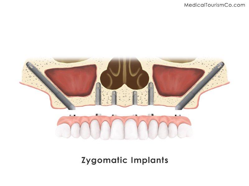 Zygomatic Implants in Los Algodones