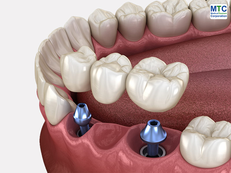 Costa Rica Dental Bridges
