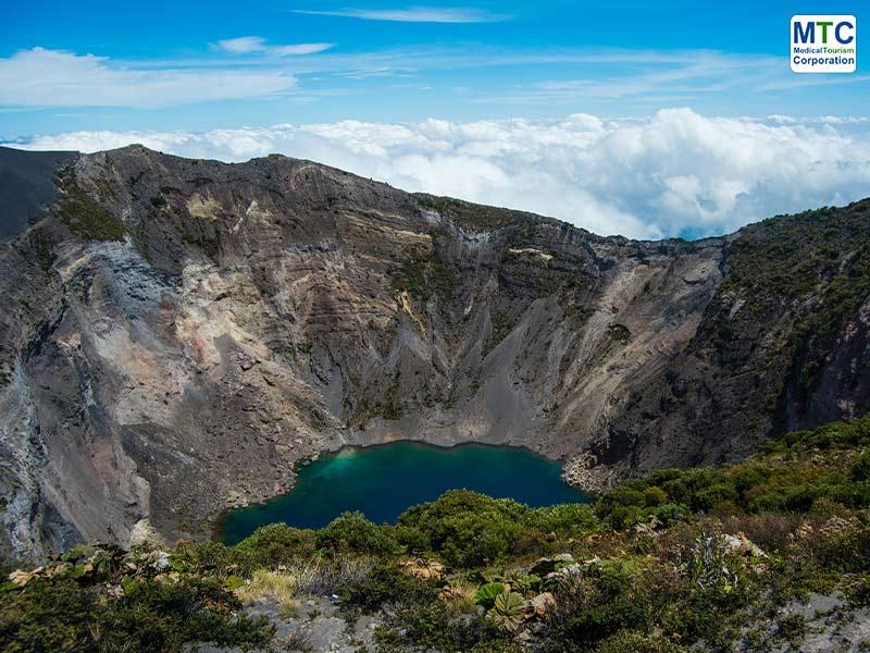 Costa Rica Dental Tourism - Irazu Volcano