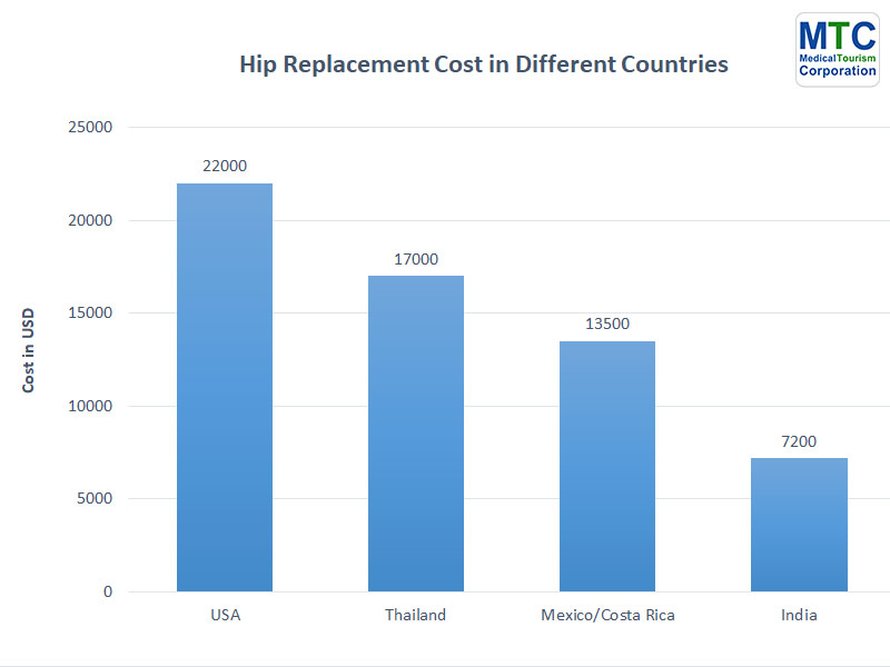 Hip Replacement Cost   Different Countries