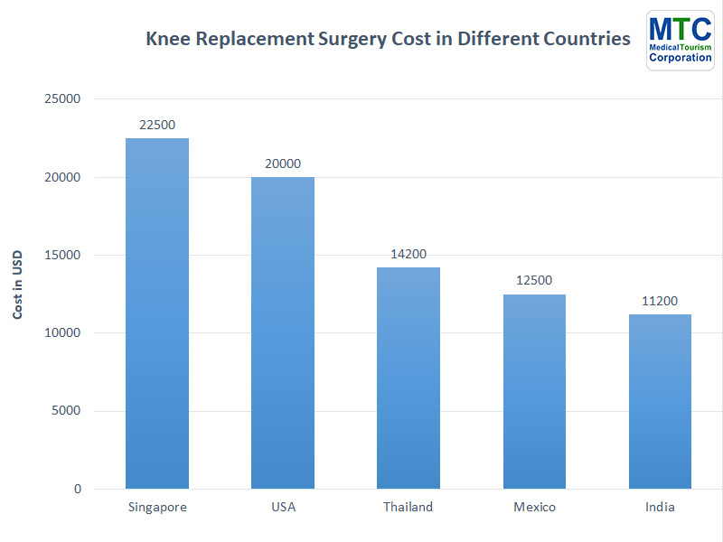 TKR Cost | Different Countries