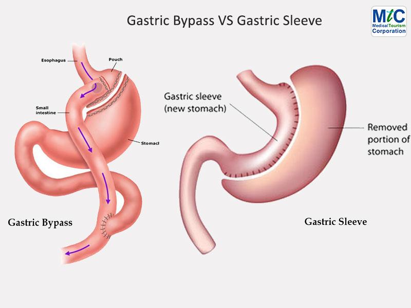 Gastric Bypass vs Gastric Sleeve | Nuevo Laredo, Mexico