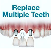 Multiple Teeth Replacement | Cancun Cosmetic Dentistry