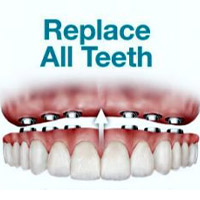 All Teeth Replacement | Cancun Cosmetic Dentistry