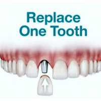 Single-tooth Replacement | Cancun Cosmetic Dentistry