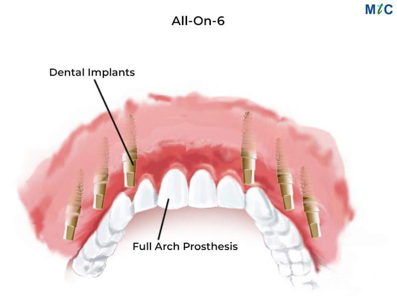All-on-6 Dental Implants