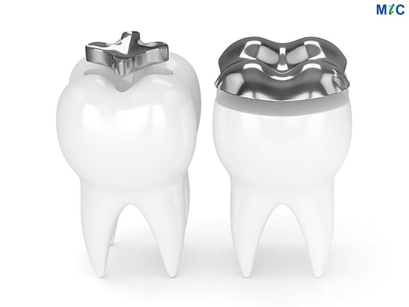 Inlay and Onlay | Cancun Cosmetic Dentistry