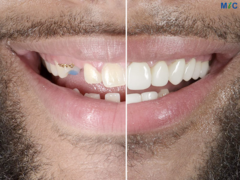 Smile Makeover | Cancun Cosmetic Dentistry