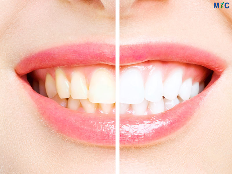 Teeth Whitening | Cancun Cosmetic Dentistry
