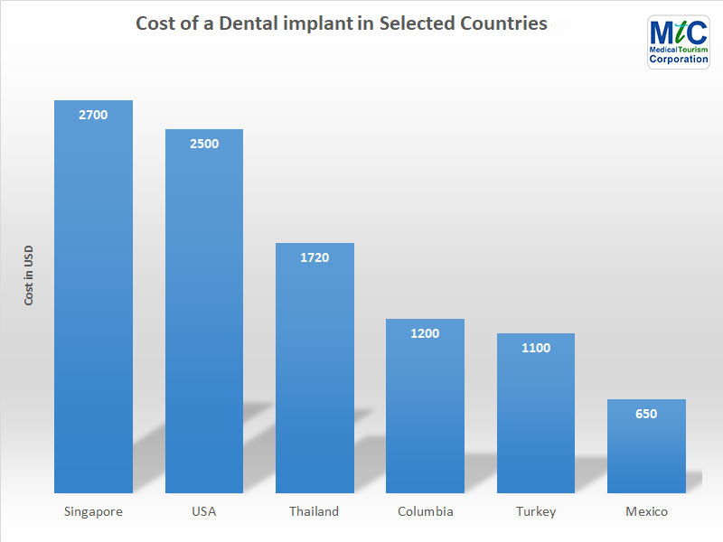 Dental Implant Cost | Selected Countries
