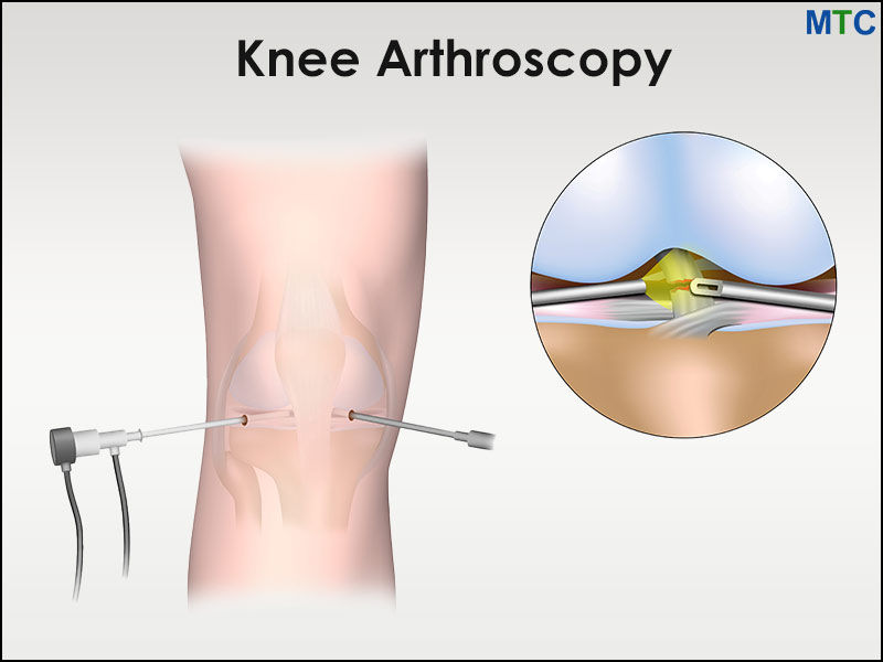 Knee Arthroscopy in Mexico