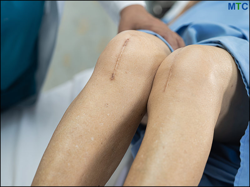 TKR Surgery Scar