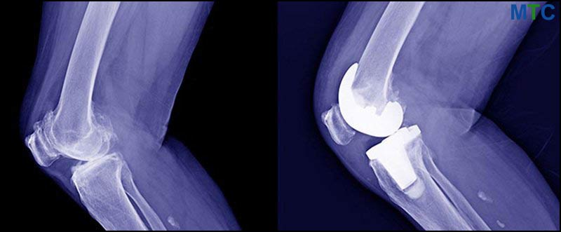 TKR X-Ray